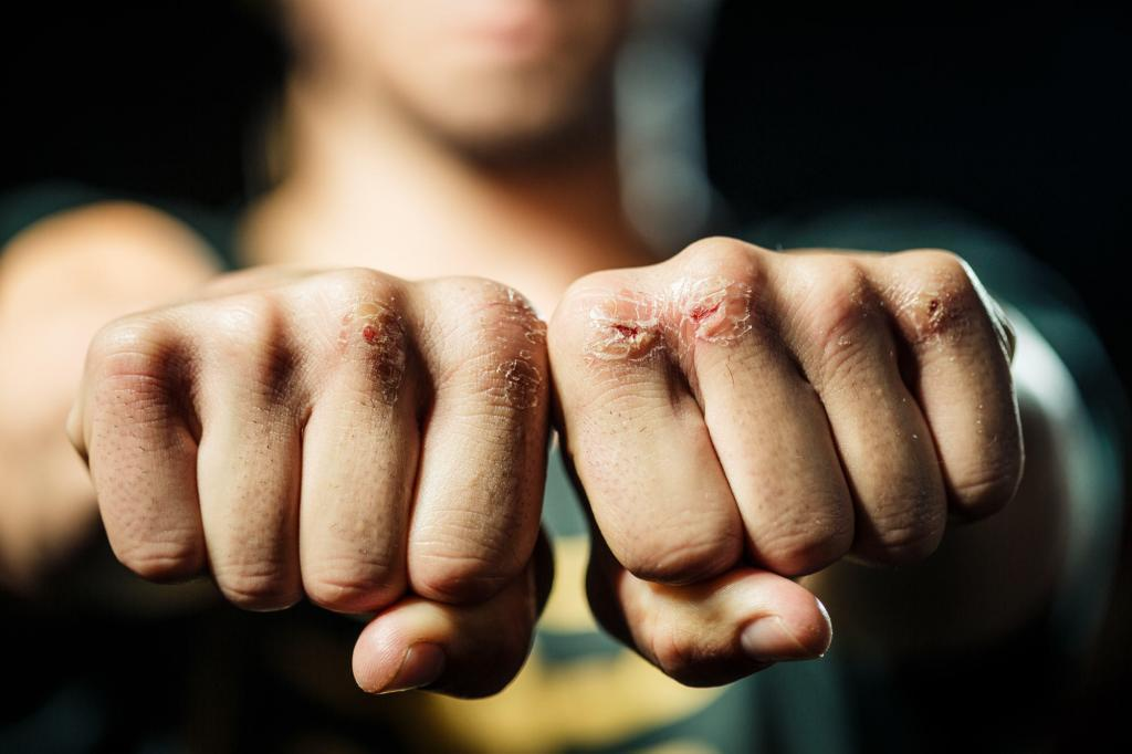 Boxer's split knuckles - Split knuckles are just one of the costs of professional boxing.